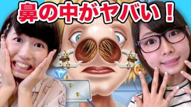 【バカゲー】よっちの鼻毛抜いてみたら汚すぎた…!鼻のお医者さんごっこゲーム実況プレイしてみた!